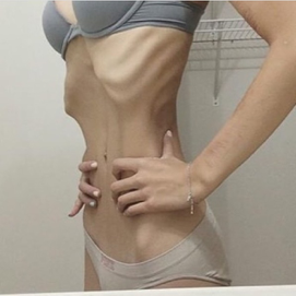Forum anorexia gaining muscle